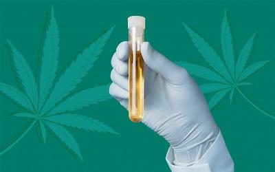 Does CBD show up on drug tests?